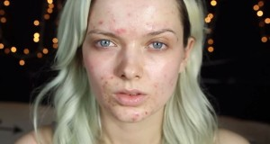 deal with acne